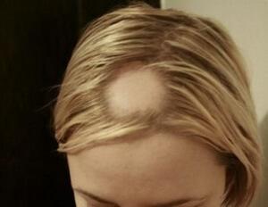 На сколько отрастают волосы в месяц с масками