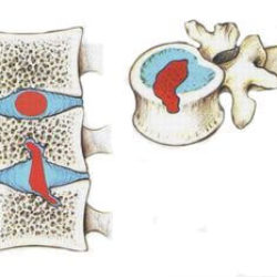 Лечение грыжи Шморля – современные методы лечения