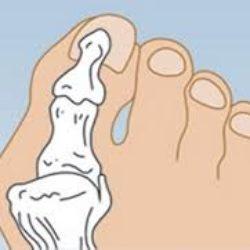 Косточки на ногах — женская проблема
