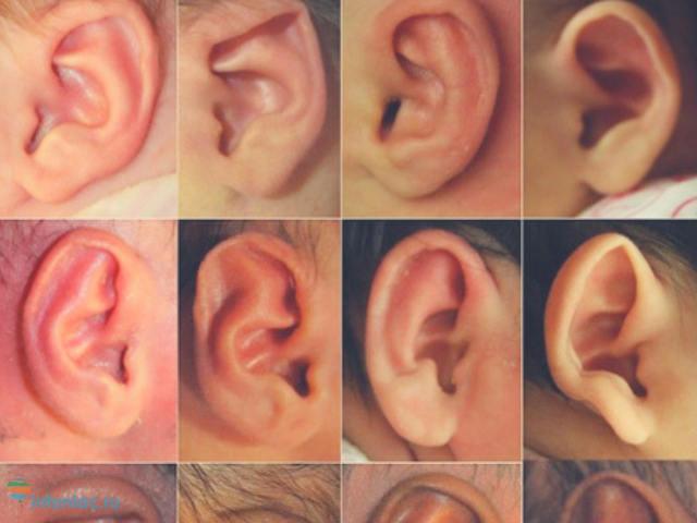 Здоровье человека по ушам