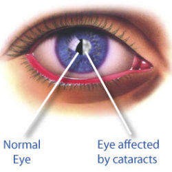 Как сохранить зрение при катаракте