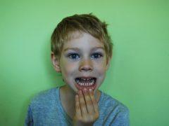 Как сохранить здоровье зубов надолго
