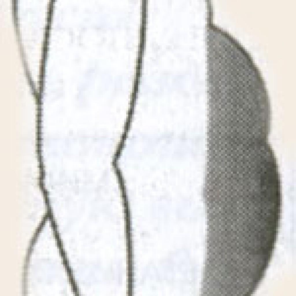 газово-каловый живот