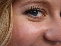 Как справиться с «гусиными лапками» вокруг глаз