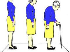 Почему развивается остеопороз и как его предупредить