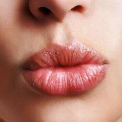 Трещины в уголках рта: причины и лечение