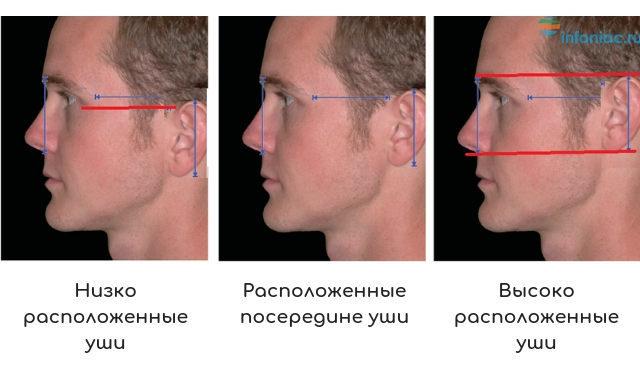 Расположение ушей