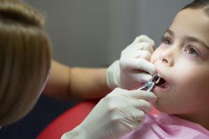 Как удалить зуб у малыша