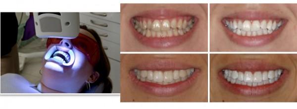 Показания отбеливания зубов