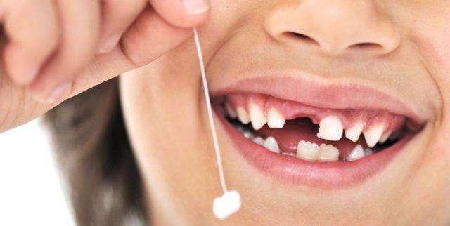 Удаление зубов e ltntq
