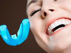 Методы выравнивания зубов без брекетов